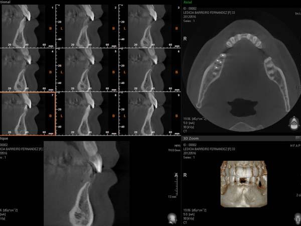 clínica abellás, ortodoncia