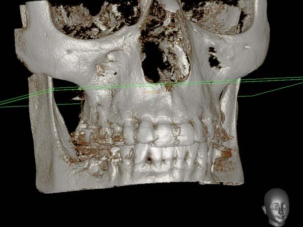 clínica abellás, tac dental 3D