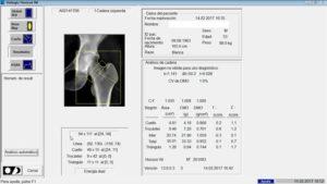 clínica abellás, densitometría ósea