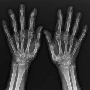 clínica abellás, radiología general