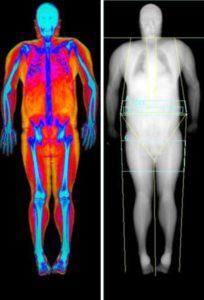 composición corporal mediante densitometría ósea.