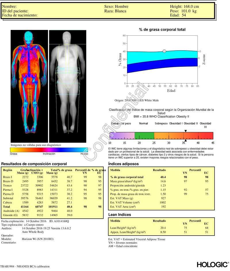 composición corporal mediante densitometría ósea. Clínica Abellás.